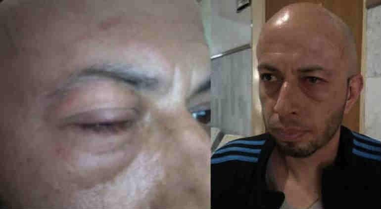Exoneran a policías de agresión a reportero